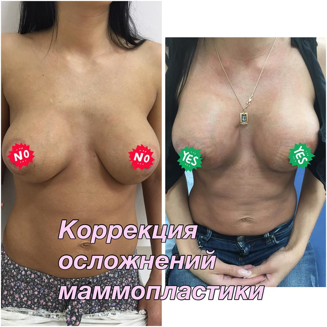 mammo8